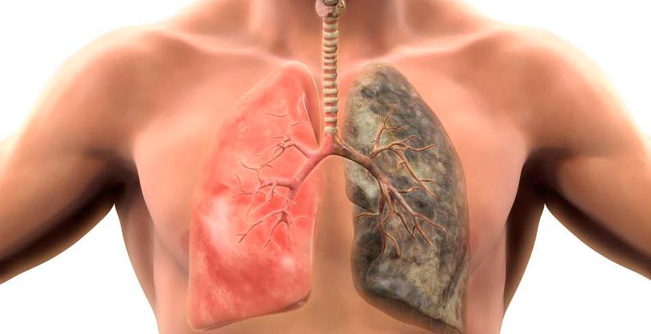 No desespero não posso deixar de fumar