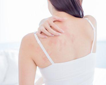 Por que coçar as costas é tão bom?